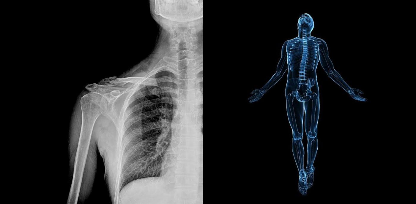 ai-doctors-diagnose-x-rays.jpg